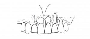 poprawa zgryzu - zabieg periodontologiczny